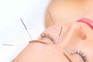Facial Acupuncture Points