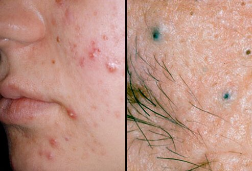 treat acne with acupuncture